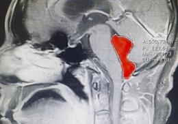 Мужчина десять лет страдал от головной боли из-за червя в мозге