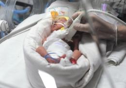 Женщина родила близнецов с разницей в 2,5 месяца
