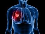 Специальные наночастицы смогут доставлять лекарство непосредственно в клетки раковой опухоли