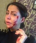 Елену Беркову избили до сотрясения мозга, Илья Григоренко поменял Ашмарину на Коробейникову