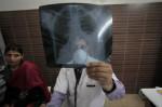 Туберкулез объявлен самой страшной болезнью 2014 года