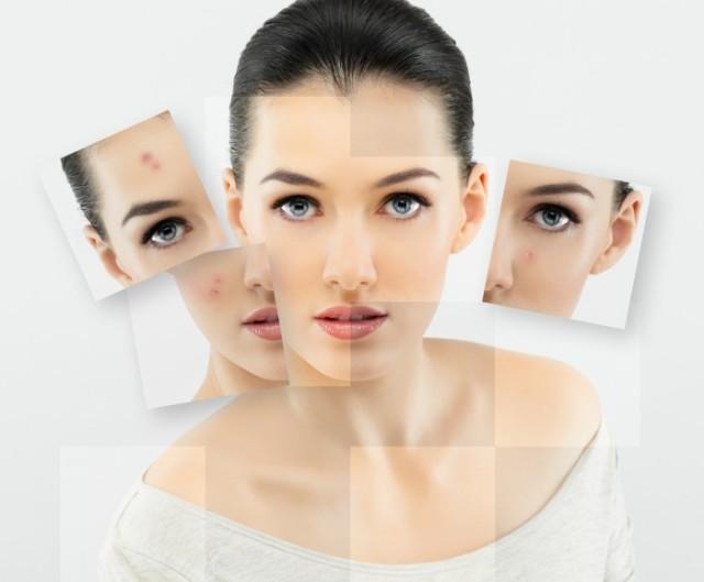 umenshenie-stressa-pomozhet-ochistit-kozhu-1