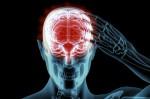 Ученые практически нашли лекарство от болезни Альцгеймера