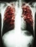 В беднейшем округе штата Алабама возникла вспышка туберкулёза