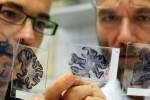 Предотвратить болезнь Альцгеймера ученые предлагают имплантацией биочипа