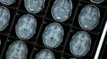 Проект оживления погибшего мозга одобрен властями