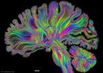 Художники визуализировали человеческий мозг с помощью компьютера