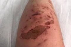 Британец едва не потерял ногу из-за прикосновения к борщевику