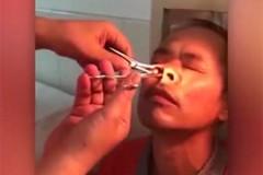 Большая пиявка две недели жила у китайца в носу