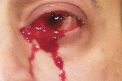 Мужчина внезапно заплакал кровавыми слезами