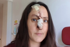 Женщина принимала рак за царапину и лишилась носа