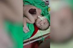 Ребенок родился с сердцем вне тела из-за редчайшего заболевания