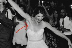 Фото со свадьбы помогло невесте выявить рак
